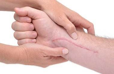 Scars: Prevention and Treatment