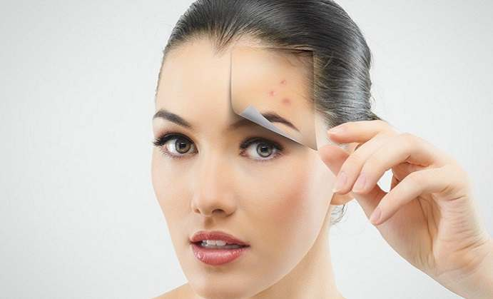 Understanding acne scars and their treatments ccuart Gallery