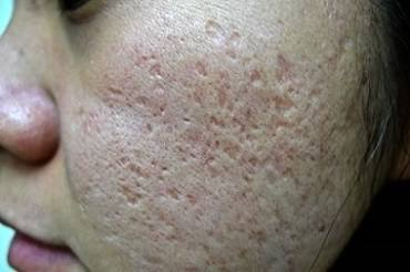 Understanding Acne Scars and Their Treatments