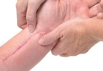 Scars – What Causes Them?