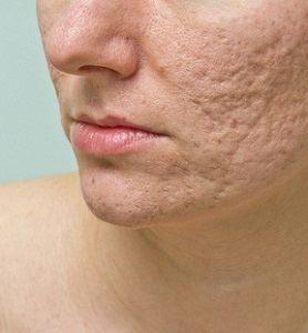Skin Restoration Treatment
